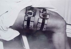 Cages with typhus carrying lice strapped onto a person's thigh. During World War II, feeding the lice with human subjects' blood was the only way to produce a viable typhus vaccine.