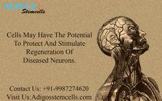 #StemCells #Potential  #Stimulate  #Regeneration #DiseasedNeurons #stemcellsTreatmentinindia #adigosstemcells #stemcellTreatmentInMubai