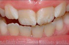 ¿Qué es la hipoplasia o alteración del color del diente?