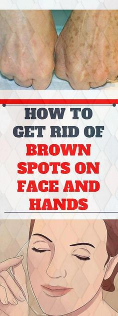 How to Get Rid of Brown Spots on Face and Hands - Tips for Healthy Black Spots On Face, Brown Spots On Hands, Dark Spots, Warts On Hands, Warts On Face, How To Get Rid, How To Remove, Spots On Forehead, Get Rid Of Warts