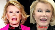 joan rivers before plastic OMG ! Actress Without Makeup, Plastic Surgery Photos, Funny Lady, Celebrities Before And After, Joan Rivers, Actresses, Actors, Surgery, Female Actresses