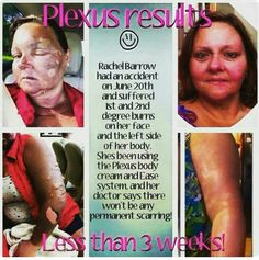 First degree burns and second degree burns are starting to heal with the help of Plexus Body Cream and Plexus Ease. No permanent scarring.