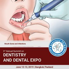 Dentistry 2020 is on Mar 4 2020 at Auburn Medical Conferences, Mouth Sores, Dental Care, Dentistry, 10 Days, Health Care, Europe, Sign, Dental Caps