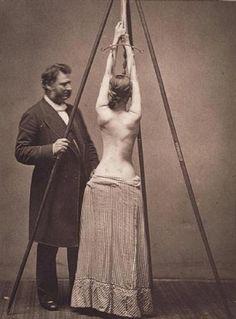 Lewis Sayre and his suspension device for the treatment of scoliosis (1877)