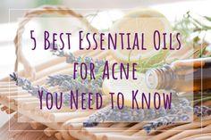 5 Best Essential Oil