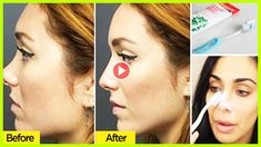 Did You Know That Toothpaste Can Make Your Nose Smaller Yes, It's True | Can You Reshape Your Nose ? - YouTube