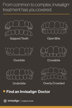 Invisalign clear aligners are tried and true, with over 4 million smile transformations to prove it. Get started with the most advanced clear aligner system in the world by finding an Invisalign provider today.