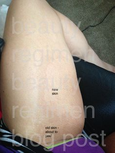 """How to remove dark inner thighs """"after"""" picture"""