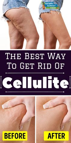 Using Exercise to Reduce Cellulite There are lots of other things that you can do in order to decrease cellulite. Little is known about the causes of cellulite. Causes Of Cellulite, Cellulite Exercises, Cellulite Cream, Cellulite Remedies, Reduce Cellulite, Anti Cellulite, Cellulite Workout, Tighten Loose Skin, Do Exercise