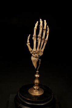 Human skeletal hand on display 1800's.