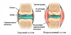 Что такое хрящ? Хрящ является важным структурным компонентом тела. Это твердая ткань, но мягче и гораздо более гибкая, чем кость. Он является соединительной