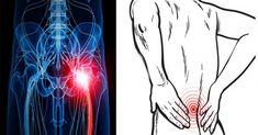 3 enkla sätt att bli av med ryggsmärtor och ischias utan piller eller kirurgi!