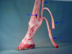 The inferior check ligament naturally protects the flexor tendons from over flexing.