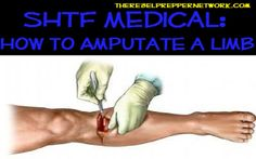 SHTF Medical Skill of the Day: How to Amputate a Limb. Emergency First Aid, Emergency Preparation, Emergency Medicine, In Case Of Emergency, Survival Life, Survival Prepping, Survival Skills, Survival Equipment, Bushcraft