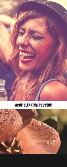Accutane pills for acne