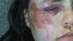 Violó la perimetral y con otros tres hombres molió a golpes a su ex Men