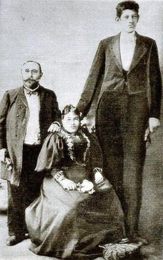 Julius Koch a.k.a Le Geant Constantin, was born in Reutlingen, Germany in 1872, and died in Mons, Belgium on March 30th, 1902. He stood 8′ 1″ tall, and was a victim of the malady eunuchoidal-infantile gigantism (daddy-longlegs syndrome). Julius Koch's femurs were the longest on record being 30 inches long, and his hands were said to be 15 inches in length.