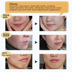 TCM Scar and Acne Mark Removal Gel Cream Ointment, Anti-inflammatory and Rapairing,Acne Scar Removal Cream Skin Repair Face Cream Acne Spots Acne Treatment Blackhead Whitening Cream Stretch Marks Acne Mark Removal, Scar Removal Cream, Scar Cream, Acne Marks, Acne Spots, Acne Treatment, Nail Treatment, Skin Treatments, Artists