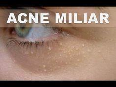 Remedios caseros para la milia, quistes de millium o acné miliar - Como tratarlo en casa - YouTube