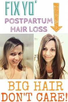 How To Cope With Postpartum Hair Loss #ArganOilForHairLoss