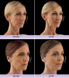 DermaCare, The Premier Medical Spa in the Pacific Northwest - Juvéderm™ Voluma XC Botox Fillers, Dermal Fillers, Cheek Injections, Botox Before And After, Botox Cosmetic, Fat Transfer, Medical Spa, Rhinoplasty, Pacific Northwest
