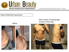 Best Results Vaser Liposuction Thailand. Save upto 80% on Vaser Liposuction Thailand Best Results, Best Doctors, Best Deals