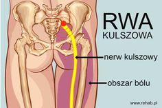 Rwa kulszowa – objawy, przyczyny, leczenie