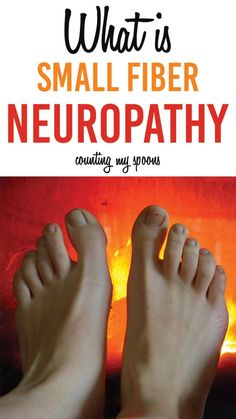 What is small fiber polyneuropathy and what does it have to do with fibromyalgia? Are they connected? Is that burning in your feet a symptom? Chronic Fatigue, Chronic Illness, Chronic Pain, Peripheral Neuropathy, Fibromyalgia Treatment, Fibromyalgia Diet, Costochondritis, Crps, Fibromyalgia