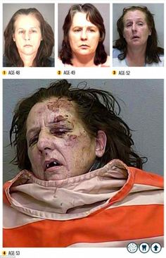 meth-before-and-after
