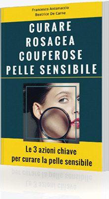 Il libro su come curare rosacea couperose e pelle sensibile