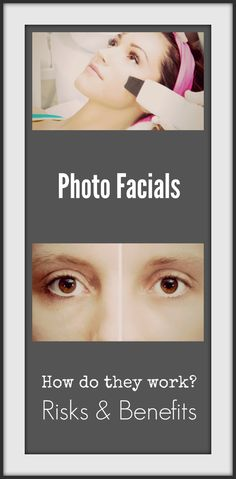 PhotoFacials - What they are, risks & benefits