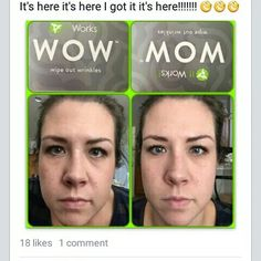 ITWORKS! WOW ( WIPE OUT WRINKLES) PRODUCT.  AMAZING RESULTS  Www.lealcohealth.com or brookeleal808@gmail.com