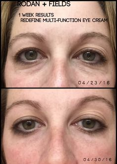 """Here are the results of my fellow consultant's who used the REDEFINE Multi Function Eye Cream!   (Photo taken 1 week apart, same time of day, no make-up). Her words- """"I used to be told multiple times a week by colleagues """"you look tired my dear"""" hah, now I know way.""""  Message me to get yours today!"""
