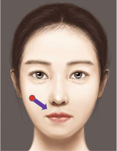Figure 5.98 from The Art and Science of Filler Injection: Based on Clinical Anatomy and the Pinch Technique   Semantic Scholar Nose Fillers, Facial Fillers, Botox Fillers, Plastic And Reconstructive Surgery, Plastic Surgery, Filler Injection, Surgery Journal, Cosmetic Fillers, Hyaluronic Acid Fillers