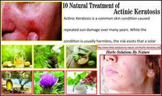 10 Natural Treatment of Actinic Keratosis