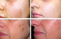 ¿Cómo quitar esas molestas manchas en la piel con estos métodos naturales?