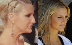 In one of the most well-known examples of good plastic surgery, Ashlee Simpson swapped her large Roman nose with a more slim, straight version in 2006. Though she denied having work done at first, her nose job was so obvious that it really changed her entire appearance! While she was always pretty, her new nose suits her face much better.