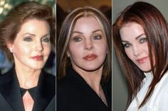 Celebrity Plastic Surgery Before & After. Priscilla Presley – Rosemary Begley Celebrity Plastic Surgery Before & After. Priscilla Presley Celebrity Plastic Surgery Before & After. Bad Plastic Surgeries, Plastic Surgery Gone Wrong, Cheek Implants, Lip Augmentation, Heidi Montag Plastic Surgery, Priscilla Presley Plastic Surgery, Worst Celebrities, Eyelid Surgery, Celebrity Plastic Surgery
