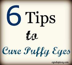 6 Tipů, jak na opuchlé oči