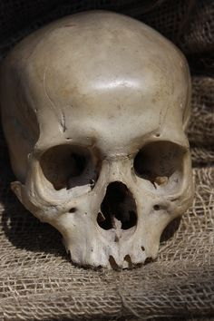Human Skull. Ian Strachan collection. Previously of the William Jamieson collection.