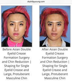 Aesthetic facial plastic surgery