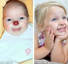 "For two-year-old Connie Lloyd, there was nothing amusing about having a bright red ""clown's nose."" Born with a benign tumor that grew to cover her nose, she suffered cruel taunts and name-calling and was told that the rare condition could not be cured. However, the shy little girl has a reason to smile at last after surgeons defied the odds and left her with a ""nose like mum's."""
