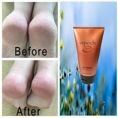 Authentic Nu Skin NuSkin Epoch Sole Solution Foot Treatment Brand New Sealed Skin Treatments, Epoch Sole Solution, Waterproof Makeup, Foot Cream, Healthy Skin Care, Belleza Natural, Feet Care, Skin Tips, Beauty