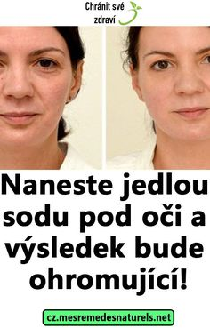 Naneste jedlou sodu pod oči a výsledek bude ohromující! Home Doctor, Bude, Mojito, Health Care, Food And Drink, Hair Beauty, Medicine, Cute Hair, Health