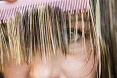 Schuppen sind eine wirklich unangenehme Sache. Schuppenshampoos wirken recht gut aber leider nicht immer. Es gibt jedoch einige Hausmittel gegen Schuppen, die wirklich helfen - und die haben wir hier einmal zusammengestellt.Ursachen für Schuppen Bei Schuppen handelt es sich um abgestorbene Hautzellen, die, während die Kopfhaut neue Zellen bildet, abgeschliffen werden. Sie sind winzig klei ...