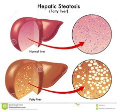 http://liverbasics.com/hepatic-steatosis.html Hepatic steatosis, also referred to as fatty liver or non-alcoholic fatty liver disease, is not a serious threat to your health. However, what it generally indicates or is caused by is usually more severe.