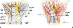 Image result for median nerve distribution Median Nerve, Carpal Tunnel Syndrome, Image