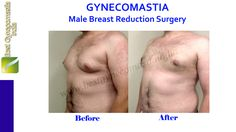 #Gynecomastia Before and After Image #DrAjayaKashyapClinic Know more about this procedure at: www.bestgynecomastiaindia.com Contact Us ☎ (995) 822.1983  (995) 822.1982 (995) 822.1981 From India #CosmeticSurgery #Cosmetic #Surgery #GynecomastiaIndia #GynecomastiaDelhi #Delhi #India #ManBoobs #Chest #GoodChest #Career #Profession #JobSeekers #EnhancingLooks #GoodLooks #PerfectBody #PerfectShape #MensHealth #MaleBeauty #FatRemoval #MaleBreastReduction #ExpertSurgeon