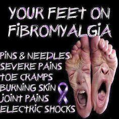 Fibro feet