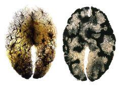 Juxtapoz Magazine - Gray Matters by Constance Jacobson Philosophy Of Mind, Brain Art, Working Drawing, Philadelphia Museum Of Art, Gray Matters, Human Mind, Anatomy Art, Work Inspiration, Science Art